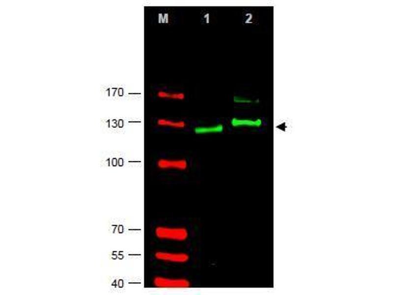 Image no. 1 for anti-GLI2 antibody (GLI Family Zinc Finger 2) (AA 40-60) (ABIN401285)