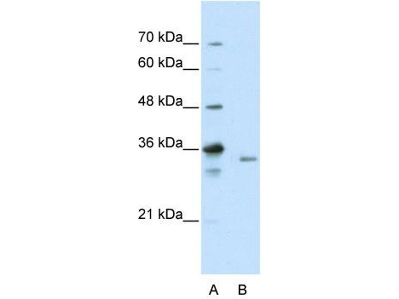 Western Blotting (WB) image for anti-Exosome Component 3 (EXOSC3) (C-Term) antibody (ABIN184036)