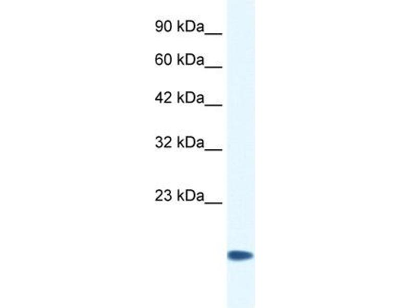 Western Blotting (WB) image for anti-Cysteine and Glycine-Rich Protein 3 (CSRP3) (Middle Region) antibody (ABIN2778310)