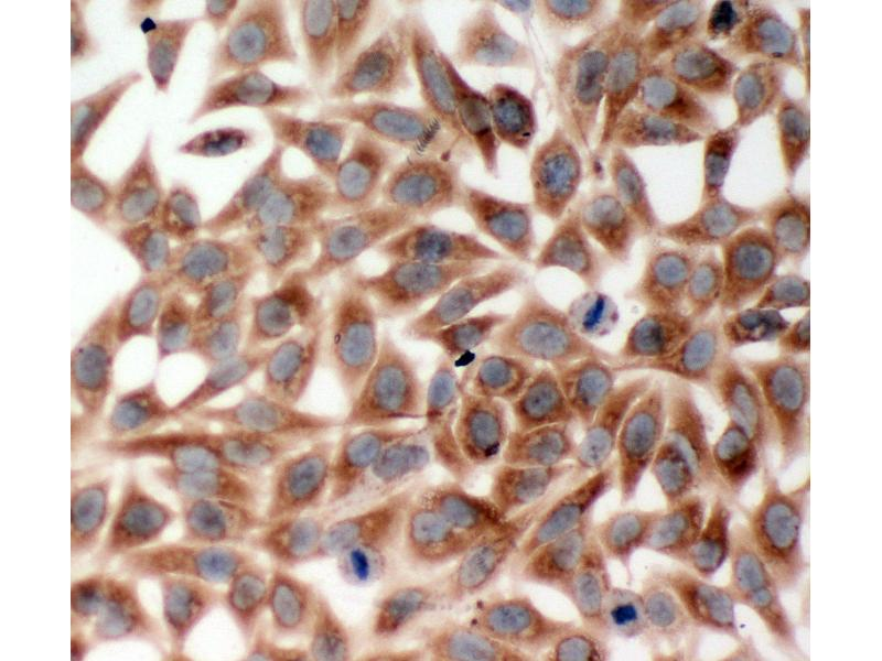 Immunohistochemistry (IHC) image for anti-TNF Receptor-Associated Factor 2 (TRAF2) (AA 305-325), (Middle Region) antibody (ABIN3044047)