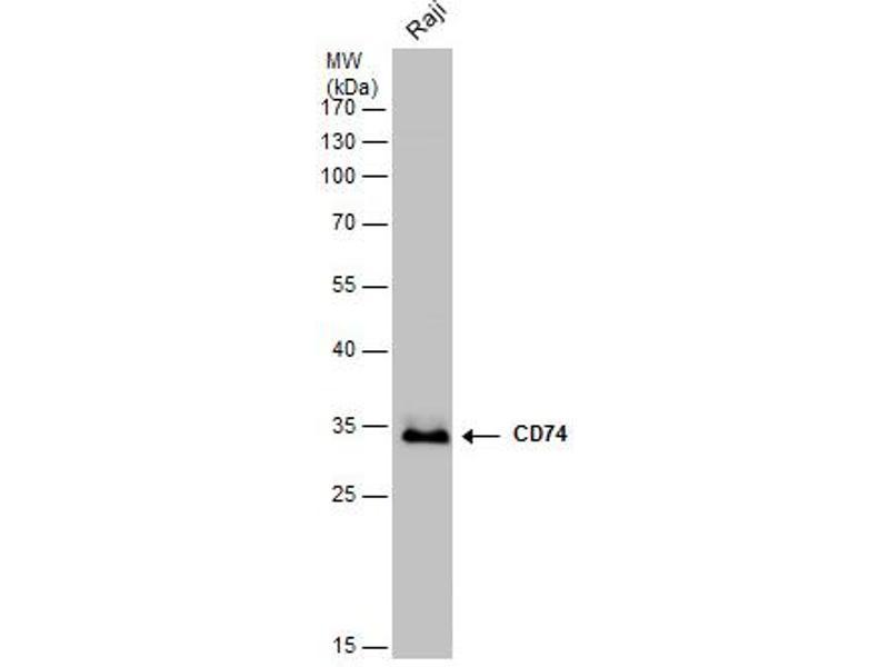 Western Blotting (WB) image for anti-HLA-DR-gamma (CD74) (N-Term) antibody (ABIN2856756)