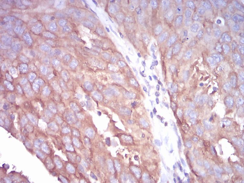 Immunohistochemistry (IHC) image for anti-Tubulin, beta 1 (TUBB1) (AA 33-166) antibody (ABIN5542398)