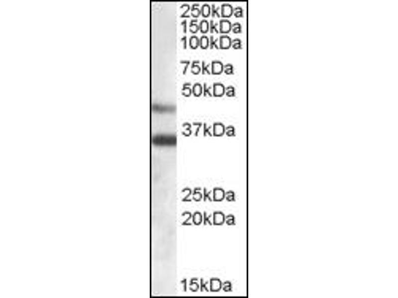 image for anti-Arylsulfatase B (ARSB) (Internal Region) antibody (ABIN372553)