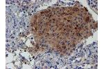 image for anti-Leukocyte Cell-Derived Chemotaxin 2 (LECT2) (AA 19-151) antibody (ABIN1491076)