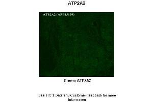 Immunohistochemistry (IHC) image for anti-ATPase, Ca++ Transporting, Cardiac Muscle, Slow Twitch 2 (ATP2A2) (C-Term) antibody (ABIN2782136)