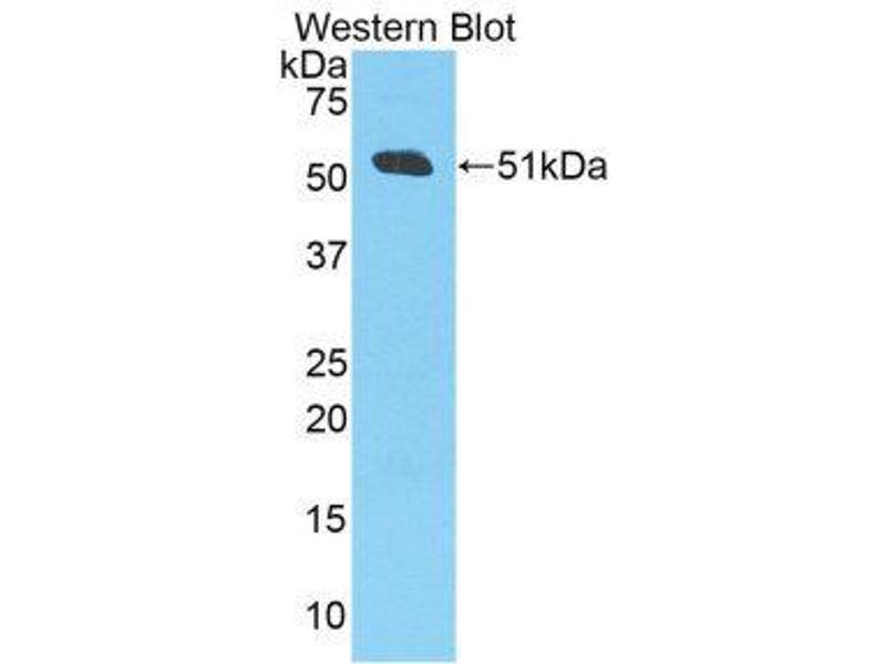 Western Blotting (WB) image for anti-Amyloid beta (A4) Precursor Protein (APP) (AA 672-711) antibody (ABIN1858065)