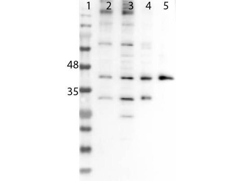 Western Blotting (WB) image for anti-Sine Oculis-Related Homeobox 3 (SIX3) (Internal Region) antibody (ABIN6657912)