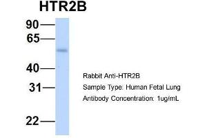 Western Blotting (WB) image for anti-Serotonin Receptor 2B (HTR2B) (N-Term) antibody (ABIN2779377)