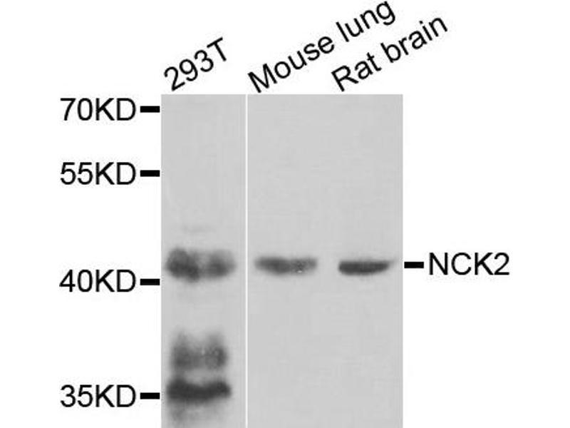 Western Blotting (WB) image for anti-NCK Adaptor Protein 2 (NCK2) antibody (ABIN2737224)