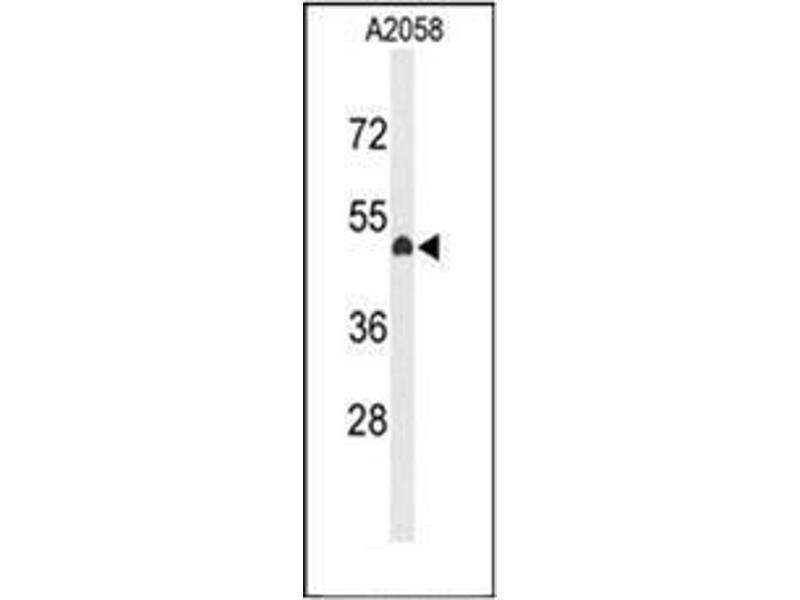 Western Blotting (WB) image for anti-Eyes Absent Homolog 4 (Drosophila) (EYA4) (C-Term) antibody (ABIN952150)