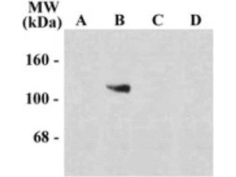 Western Blotting (WB) image for anti-NMDA Receptor 1 antibody (ABIN152465)
