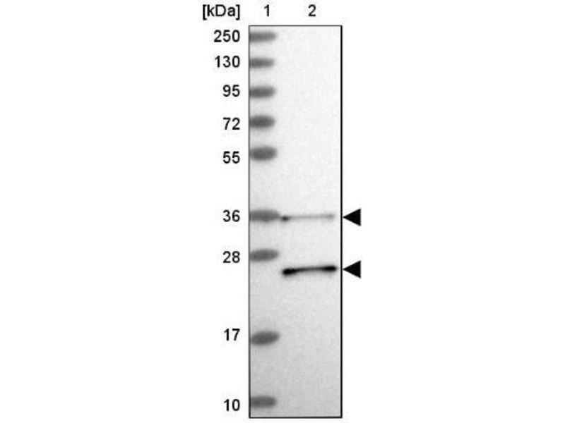 Western Blotting (WB) image for anti-RDH13 抗体 (Retinol Dehydrogenase 13 (All-Trans and 9-Cis)) (ABIN4349761)
