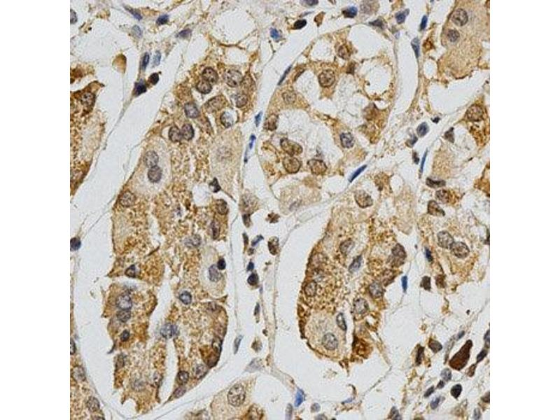 Immunohistochemistry (IHC) image for anti-MAPK10 antibody (Mitogen-Activated Protein Kinase 10) (ABIN3022948)