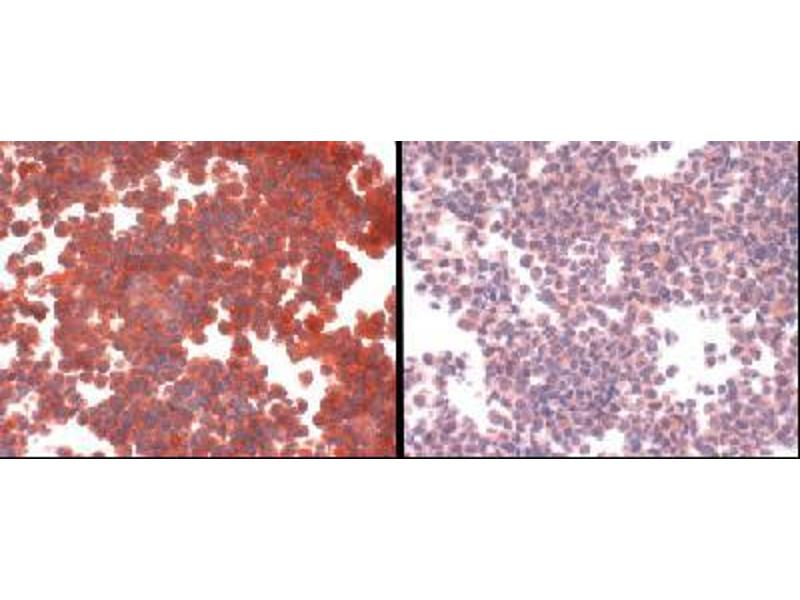 Immunohistochemistry (IHC) image for anti-Solute Carrier Family 31 (Copper Transporters), Member 1 (SLC31A1) (C-Term) antibody (ABIN251444)