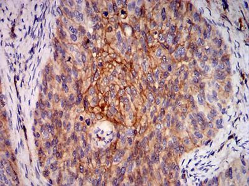 Immunohistochemistry (IHC) image for anti-V-Ral Simian Leukemia Viral Oncogene Homolog B (Ras Related, GTP Binding Protein) (Ralb) (AA 89-206) antibody (ABIN4881017)