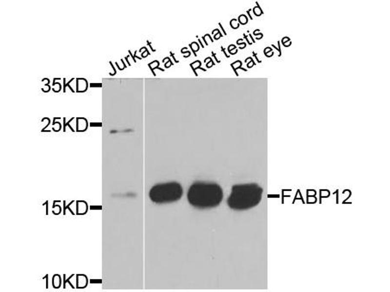 Image no. 1 for anti-Fatty Acid Binding Protein 12 (FABP12) antibody (ABIN6572069)