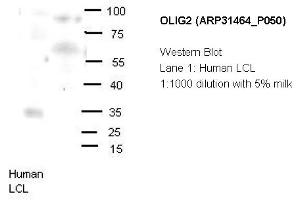 Image no. 2 for anti-Oligodendrocyte Lineage Transcription Factor 2 (OLIG2) (N-Term) antibody (ABIN2777314)