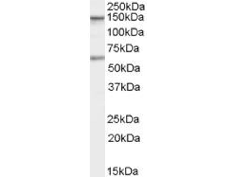 Western Blotting (WB) image for anti-CARD11 antibody (Caspase Recruitment Domain Family, Member 11) (C-Term) (ABIN2465495)