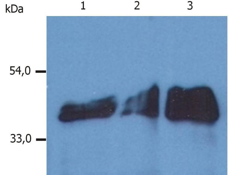 Western Blotting (WB) image for anti-KRT18 antibody (Keratin 18) (ABIN94285)