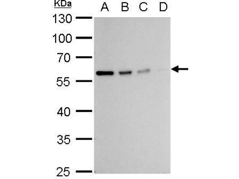 Western Blotting (WB) image for anti-Vimentin (VIM) (Center) antibody (ABIN2854814)