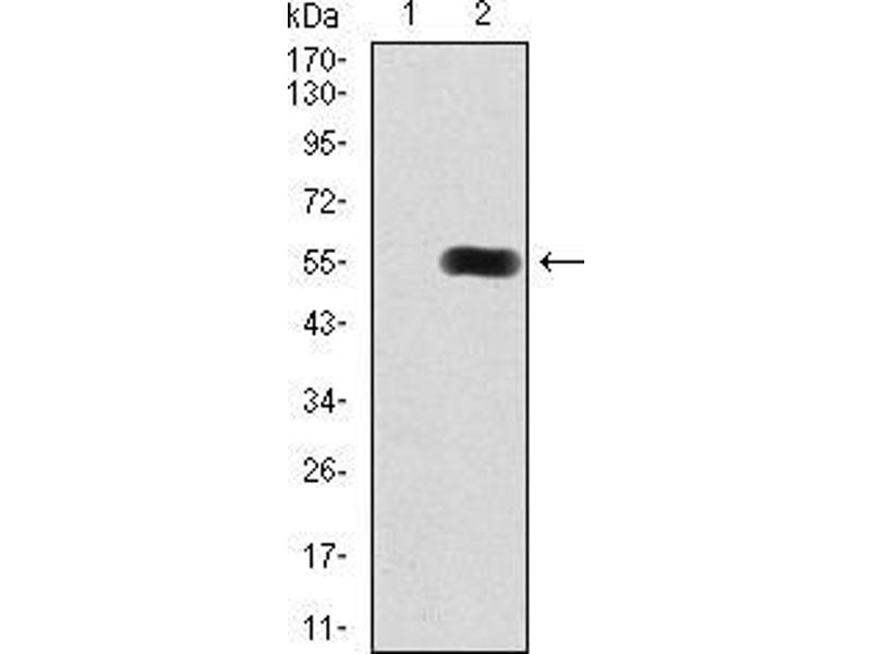 Western Blotting (WB) image for anti-Histone Deacetylase 9 (HDAC9) (AA 343-569) antibody (ABIN5542327)