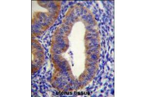 Image no. 2 for anti-FYVE, RhoGEF and PH Domain Containing 6 (FGD6) (AA 1324-1352), (C-Term) antibody (ABIN5539147)