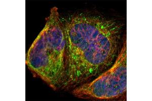 Image no. 2 for anti-P Antigen Family, Member 1 (Prostate Associated) (PAGE1) antibody (ABIN5585173)