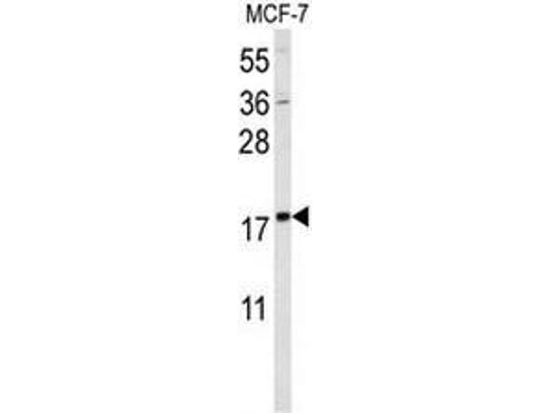 Western Blotting (WB) image for anti-SMT3 Suppressor of Mif Two 3 Homolog 1 (S. Cerevisiae) (SUMO1) antibody (ABIN955007)