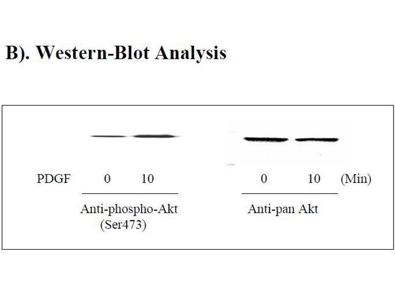 V-Akt Murine Thymoma Viral Oncogene Homolog 1 (AKT1) ELISA Kit (3)