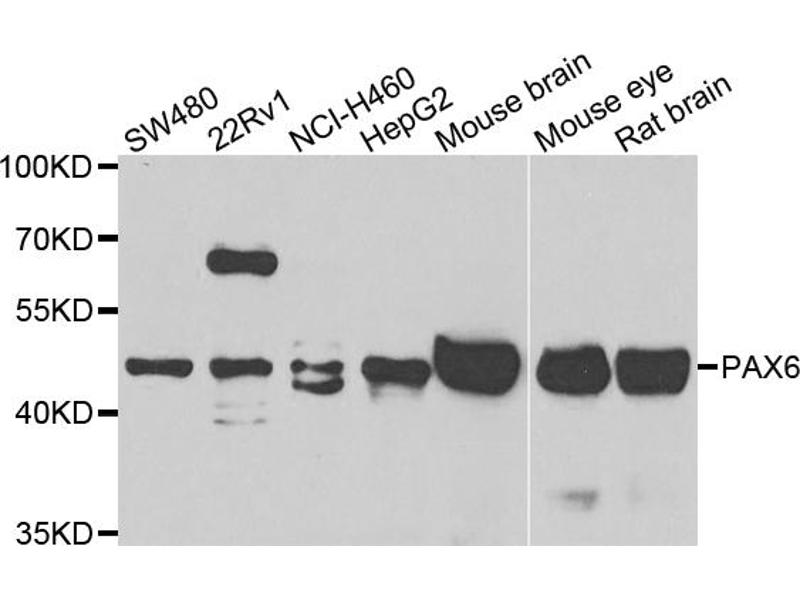 Western Blotting (WB) image for anti-Paired Box 6 (PAX6) antibody (ABIN4904684)