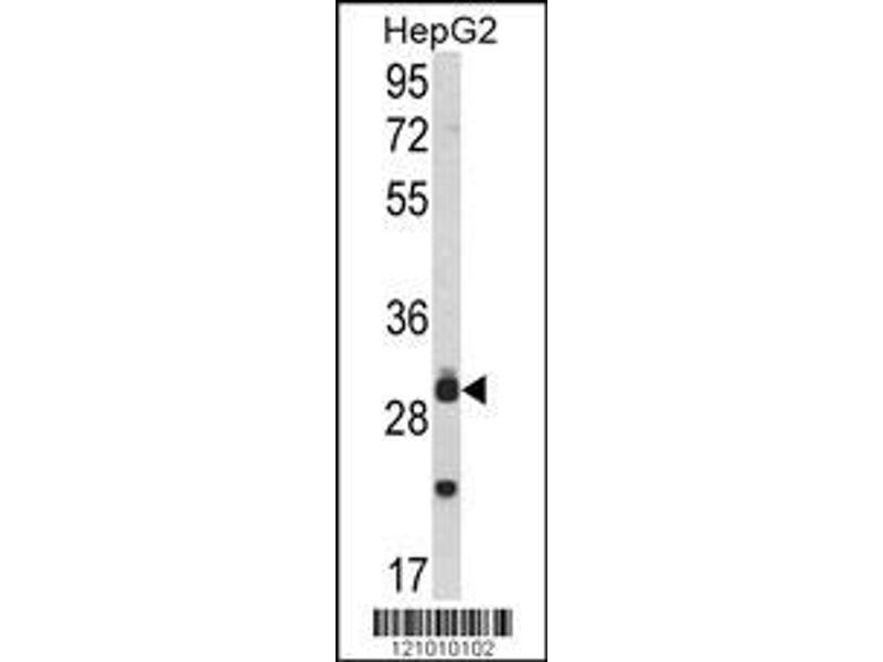 Western Blotting (WB) image for anti-MYD88 antibody (Myeloid Differentiation Primary Response Gene (88)) (ABIN2448228)