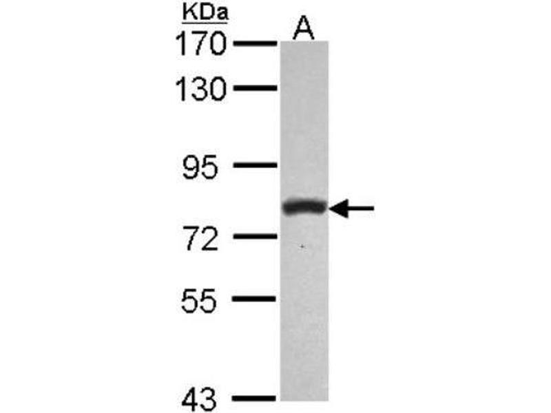 Western Blotting (WB) image for anti-phospholipase C, delta 1 (PLCD1) (C-Term) antibody (ABIN4345344)