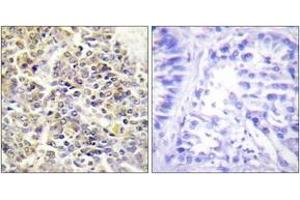 Image no. 2 for anti-Steroid Sulfatase (STS) (AA 10-59) antibody (ABIN1534195)