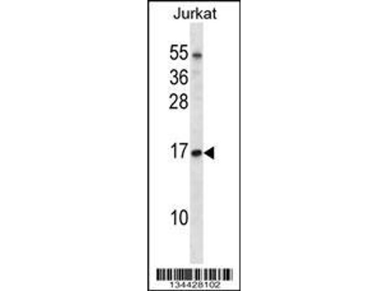 Anti Tceb1 Antibody Aa 69 98 C Term Product No Abin658734