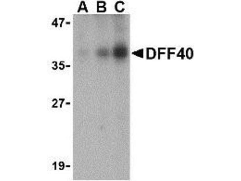 Western Blotting (WB) image for anti-DFFB antibody (DNA Fragmentation Factor, 40kDa, beta Polypeptide (Caspase-Activated DNase)) (Center) (ABIN4305065)