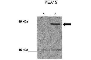 Western Blotting (WB) image for anti-phosphoprotein Enriched in Astrocytes 15 (PEA15) (Middle Region) antibody (ABIN2783293)