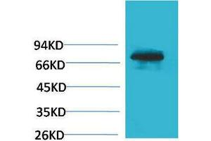 Image no. 1 for anti-Transferrin (TF) antibody (ABIN3181544)