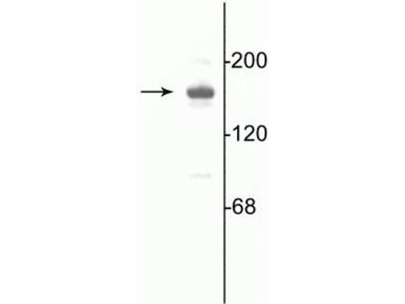 Western Blotting (WB) image for anti-Glutamate Receptor, Ionotropic, N-Methyl D-Aspartate 2a (GRIN2A) (C-Term) antibody (ABIN361396)