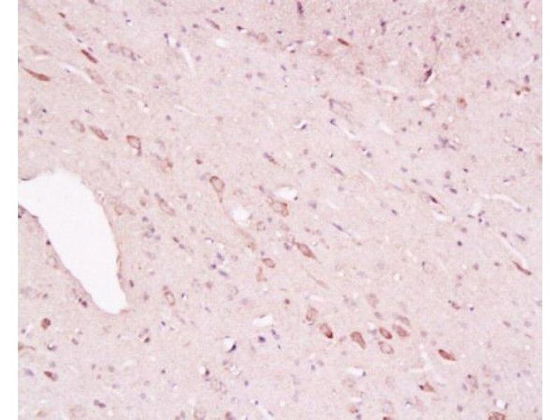 Image no. 2 for anti-Tyrosine Hydroxylase (TH) (AA 115-160) antibody (ABIN723635)
