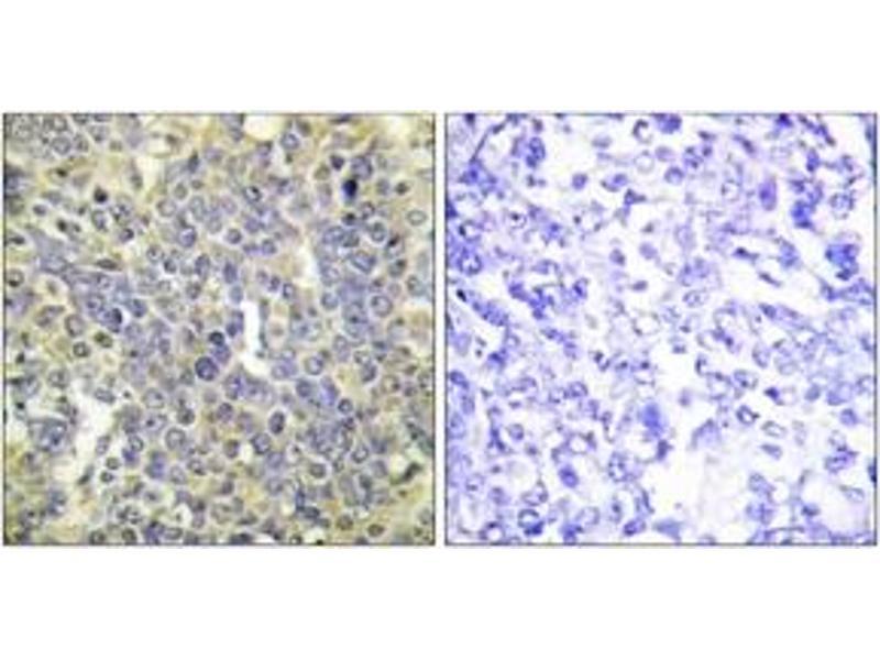 Immunohistochemistry (IHC) image for anti-Caspase 9 antibody (Caspase 9, Apoptosis-Related Cysteine Peptidase) (pThr125) (ABIN1531216)