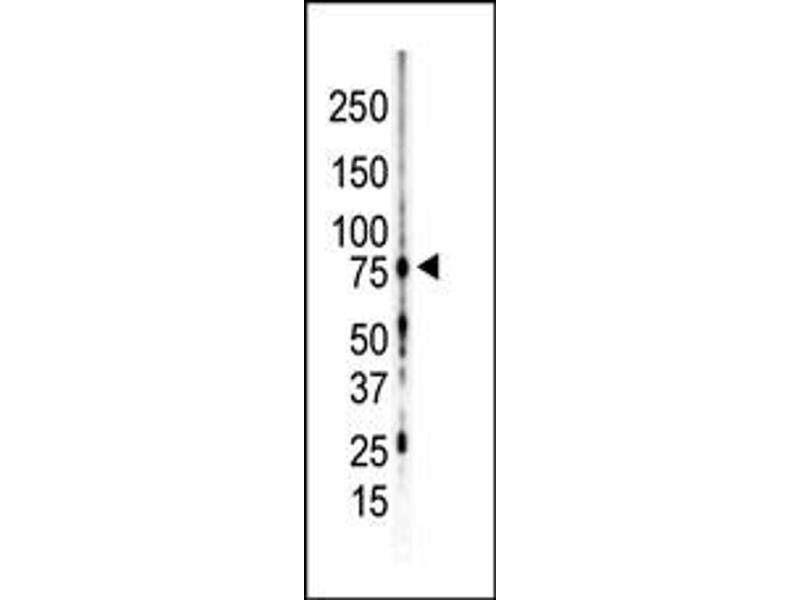 Western Blotting (WB) image for anti-PKC gamma antibody (Protein Kinase C, gamma) (C-Term) (ABIN2495499)