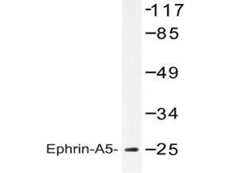 Western Blotting (WB) image for anti-Ephrin A5 (EFNA5) antibody (ABIN498425)