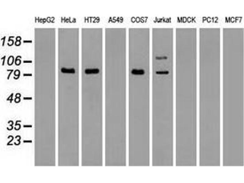 Western Blotting (WB) image for anti-V-Raf Murine Sarcoma Viral Oncogene Homolog B1 (BRAF) antibody (ABIN2452280)