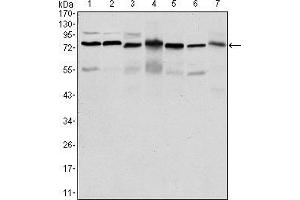 Western Blotting (WB) image for anti-PC4 and SFRS1 Interacting Protein 1 (PSIP1) antibody (ABIN969370)