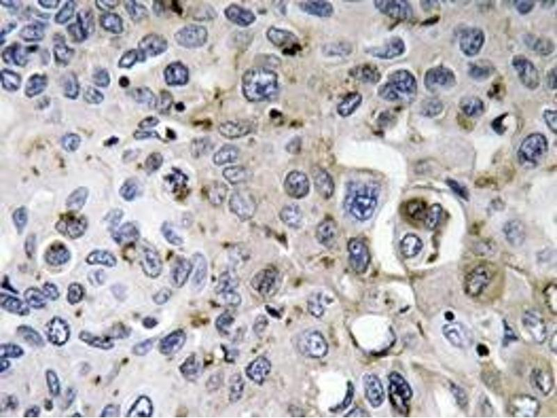 Immunohistochemistry (Paraffin-embedded Sections) (IHC (p)) image for anti-PDGFA antibody (Platelet-Derived Growth Factor alpha Polypeptide) (ABIN498533)