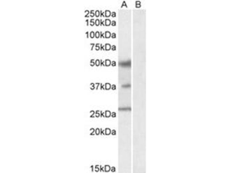 Image no. 1 for anti-FOXA1 antibody (Forkhead Box A1) (C-Term) (ABIN374334)