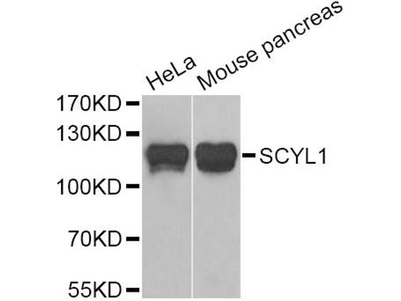 Western Blotting (WB) image for anti-SCY1-Like 1 (S. Cerevisiae) (SCYL1) antibody (ABIN2969900)