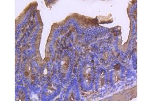 Immunohistochemistry (Paraffin-embedded Sections) (IHC (p)) image for anti-Actin, alpha 2, Smooth Muscle, Aorta (ACTA2) (AA 1-200) antibody (ABIN5945116)