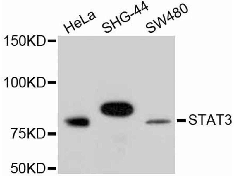 Western Blotting (WB) image for anti-Signal Transducer and Activator of Transcription 3 (Acute-Phase Response Factor) (STAT3) antibody (ABIN5997114)