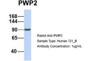 Western Blotting (WB) image for anti-PWP2 (Periodic Tryptophan Protein) Homolog, Yeast (PWP2H) antibody (ABIN4890003)